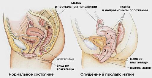 Опущение (выпадение) половых органов у женщин фото 1