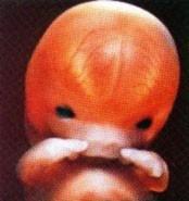 1 - 9 тиждень вагітності фото 13