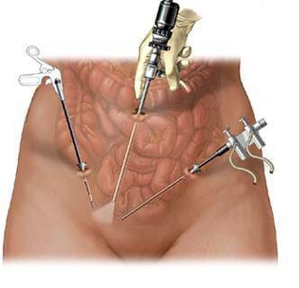 Проколы при лапароскопии