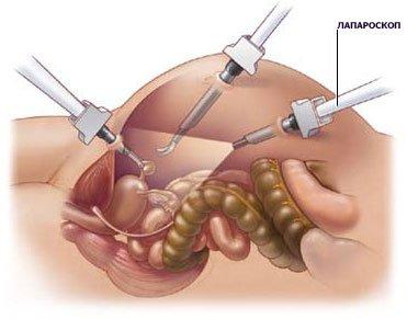 Схема лапароскопии в гинекологии