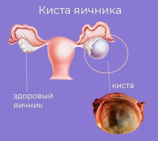Лечение кист яичника фото 1